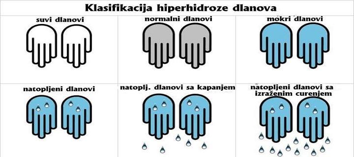 hiperhidroza dlanova