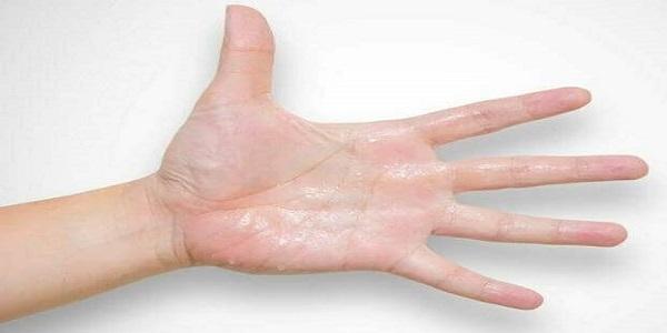 kako smanjiti znojenje ruku