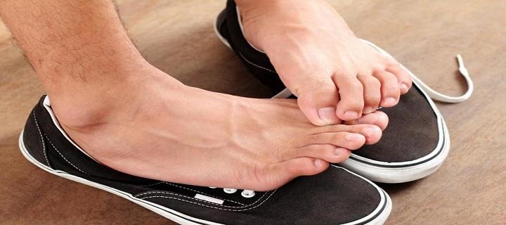 znojenje nogu u patikama