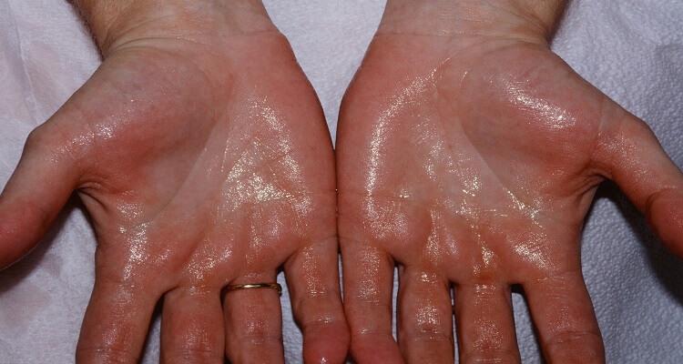ruke sa kojih kaplje znoj