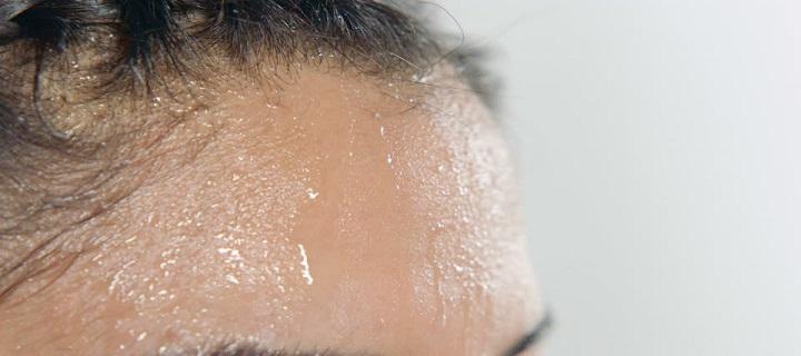 prekomerno znojenje glave